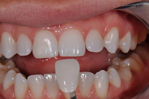 Bọc răng sứ titan giá bao nhiêu tiền & có độ bền tối đa bao lâu? 2
