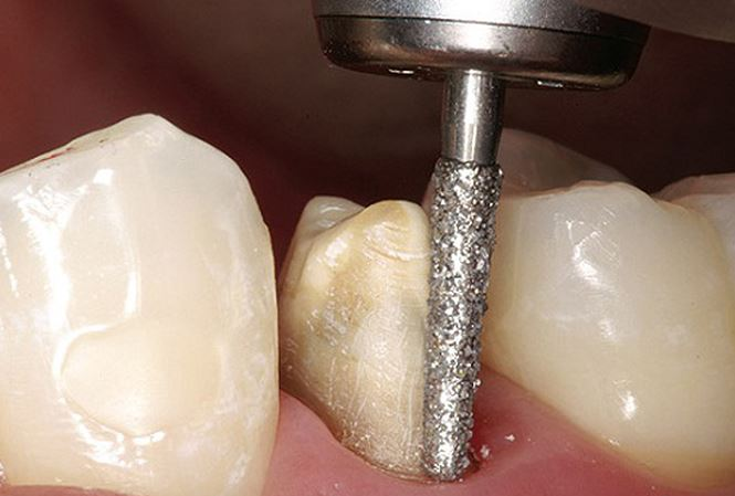 Bọc răng sứ mất bao lâu 1