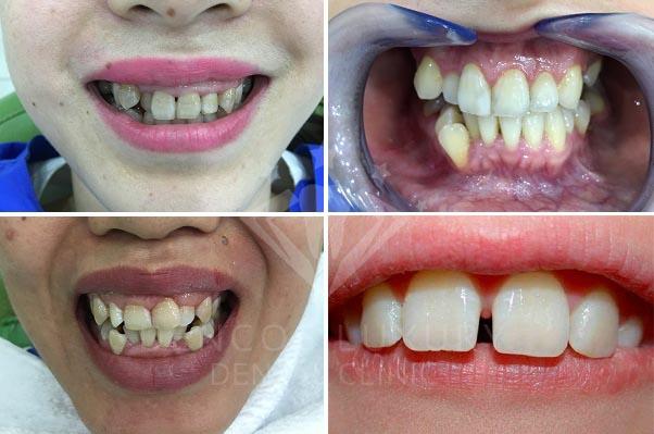 Chụp răng sứ thẩm mỹ