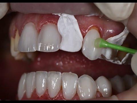 Có nên có bọc răng sứ không