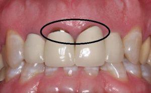 Bọc răng sứ giá rẻ 3