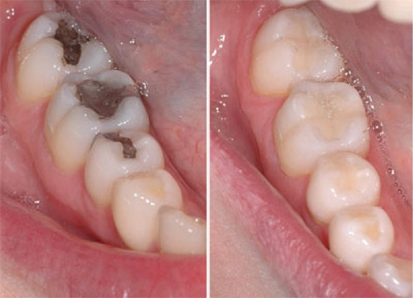 Răng sâu có bọc sứ được không