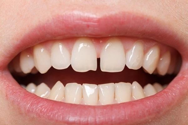 Dán răng sứ Veneer 1