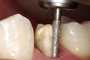 Mài răng