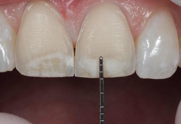 Mài răng có nguy hiểm không