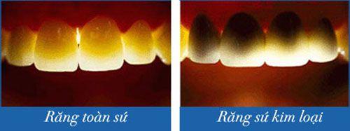 Nhược điểm răng sứ kim loại