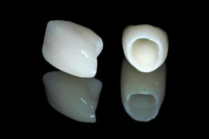 Răng sứ không kim loại  Những lưu ý để hàm răng BỀN ĐẸP lâu