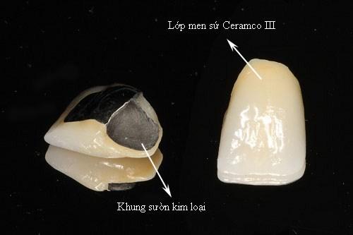 Răng sứ kim loại 1