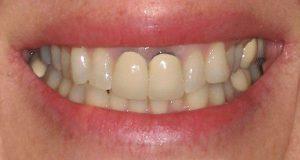 Răng sứ kim loại 2