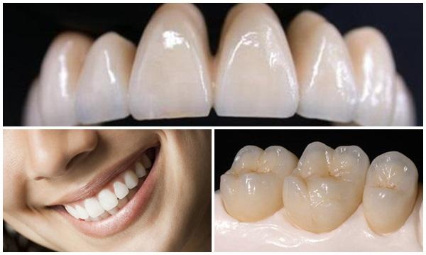 Răng sứ không kim loại giá bao nhiêu tiền? Bảng giá chuẩn 2018 1