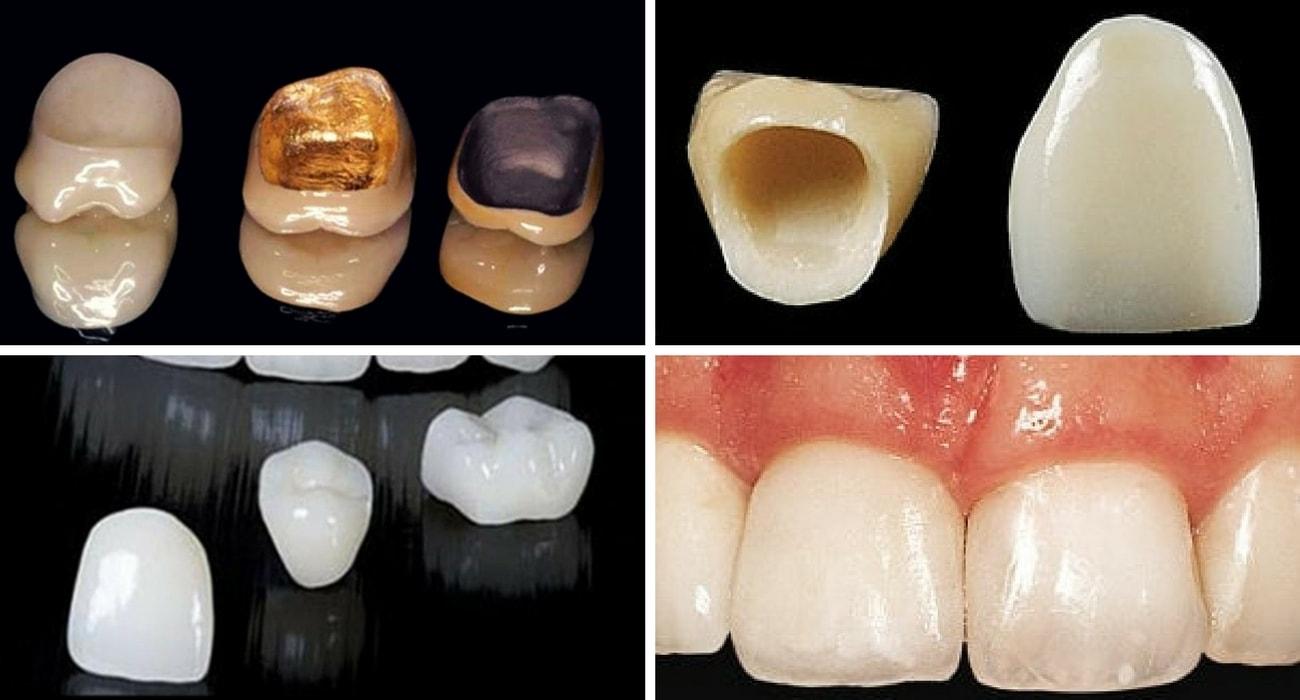 bọc răng sứ bao nhiêu tiền 2