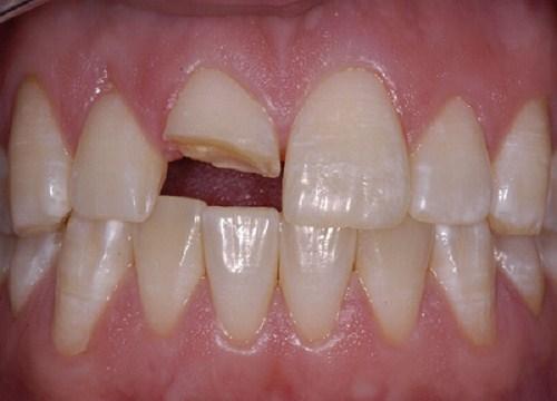 Răng bị gãy cũng là nguyên nhân dẫn đến viêm tủy răng