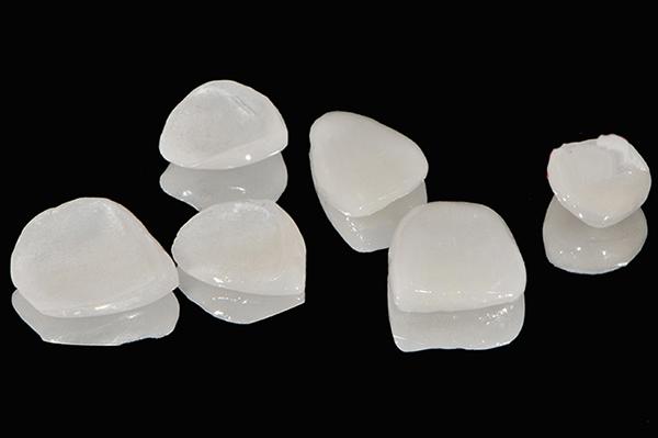 Thẻ bảo hành răng sứ Cercon: Chính sách và chế độ tốt nhất