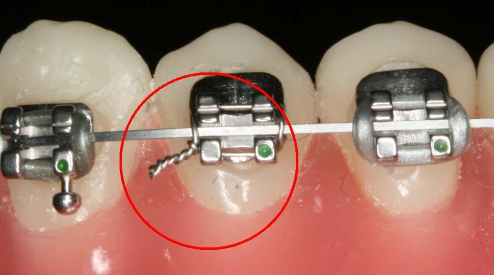 Cấu tạo niềng răng mắc cài sứ tự buộc