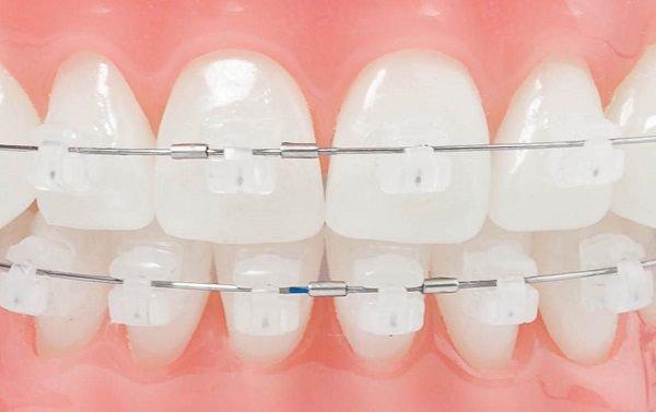 Chất liệu sứ được sử dụng làm mắc cài có màu giống với màu men răng