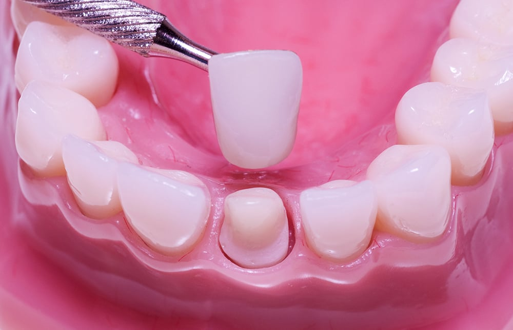 Bọc răng thẩm mỹ là gì 2